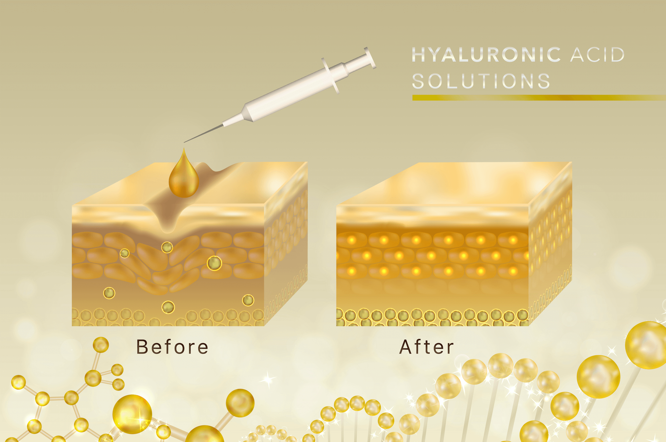 Illustration of the effect of hyaluronic acid